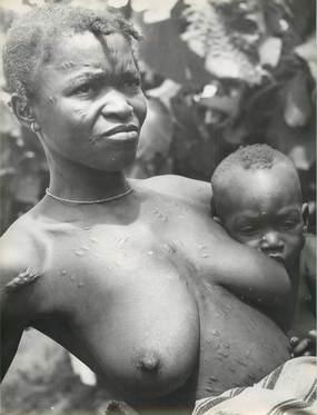 PHOTO AFRIQUE NOIRE / NU / SCARIFICATION